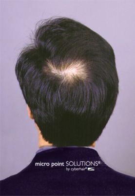 Click to find out more about Hair Loss Solution - Before & After Color