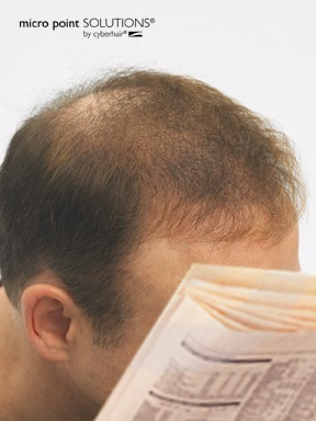 Click to find out more about Hair Loss Solutions