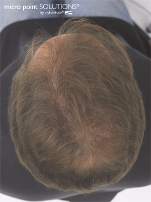 Click to find out more about Bob's Hair Replacement Treatment